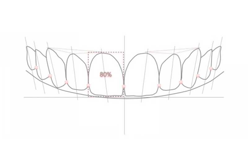 diseño digital de sonrisa