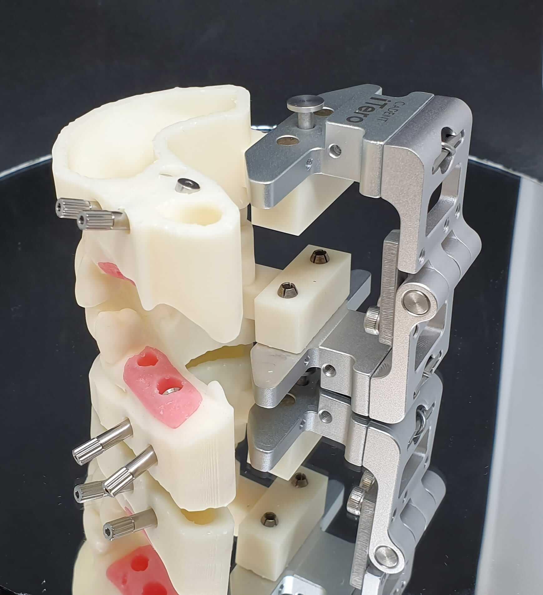 modelo 3d impreso nanodent